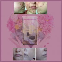 Facial Care Combo R500: Cleanser, Toner, Moisturiser, Treatment incl delivery